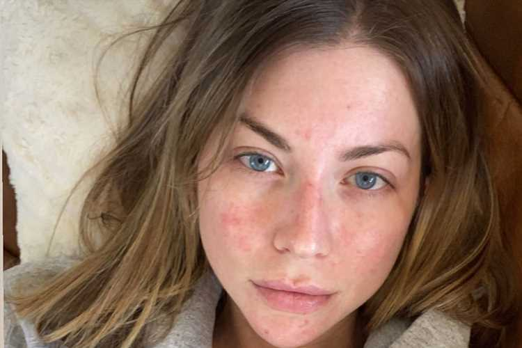Vanderpump Rules' Stassi Schroeder Shows Off Her Facial Psoriasis in Makeup-Free Selfie: 'It's a Mood'