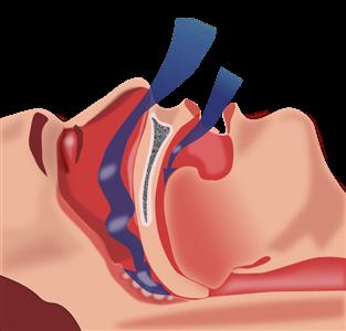 Untreated sleep apnea is associated with flu hospitalization