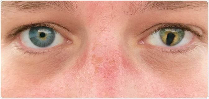 What Causes Coloboma?
