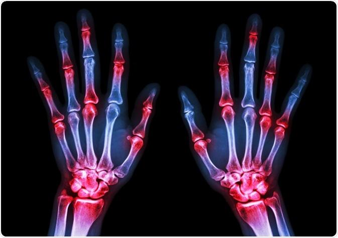 Can Antibiotics Increase the Risk of Arthritis?