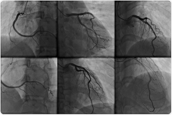 What is Angiography?