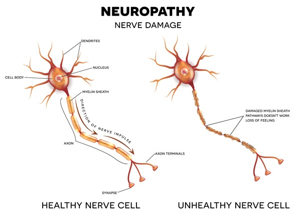 Neuronopathy and neuropathy: What's the difference?