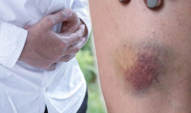 Fatty liver disease: Excessive bruising or bleeding could indicate your risk