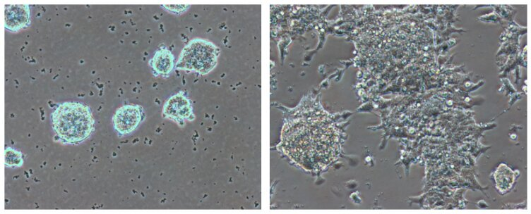 Researchers describe how embryonic stem cells keep optimal conditions for use in regenerative medicine