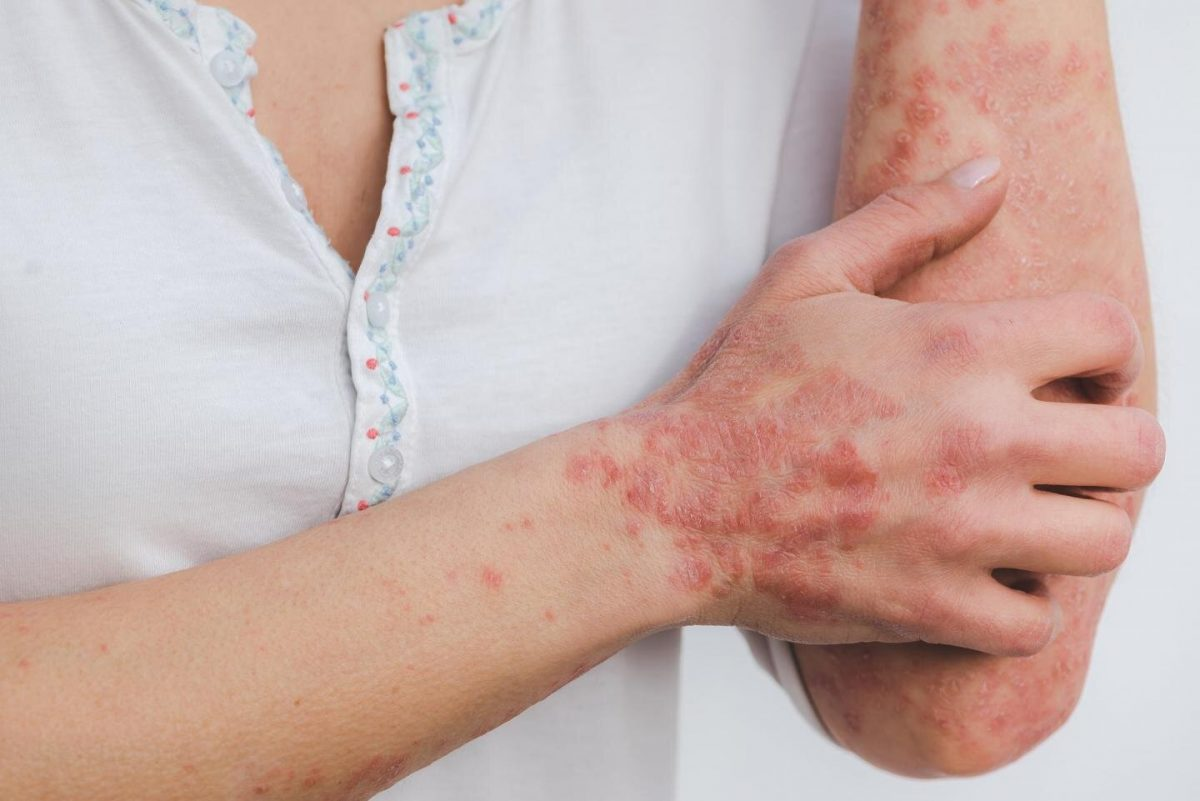 Relationship between psoriasis treatments and cardiovascular risk explained