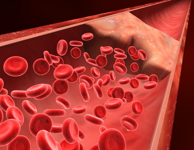 Recovered COVID-19 patients may develop blood clots due to overactive immune response