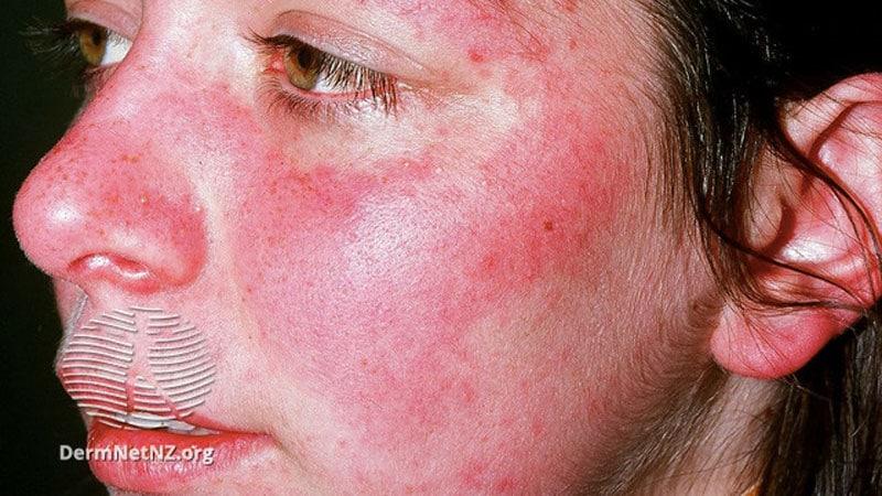 Renal, CV Damage May Develop in Mild SLE Despite Treatment