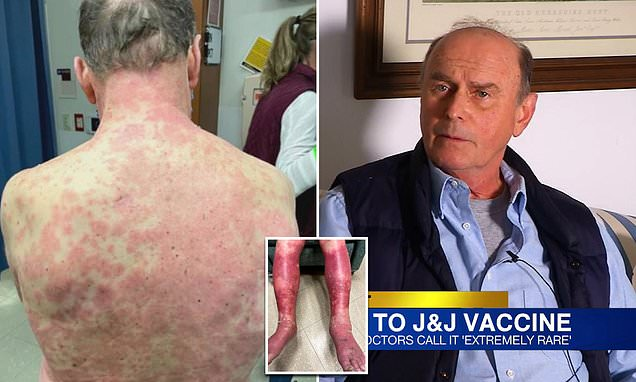 Virginia man's 'skin peeled off' after J&J Covid vaccine