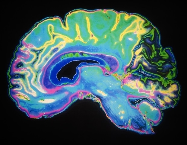 'Brain glue' may aid in functional neural repair after severe TBI