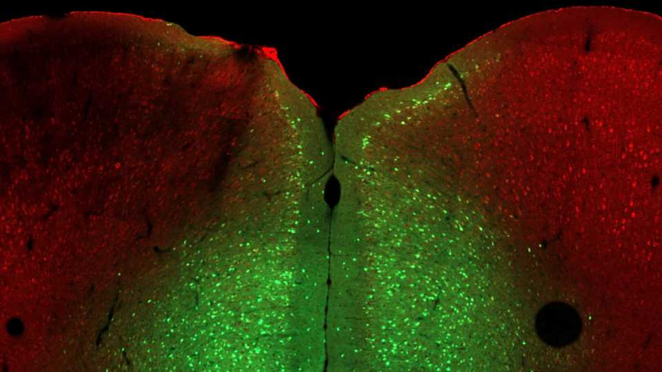 Reversing a genetic cause of poor stress responses in mice