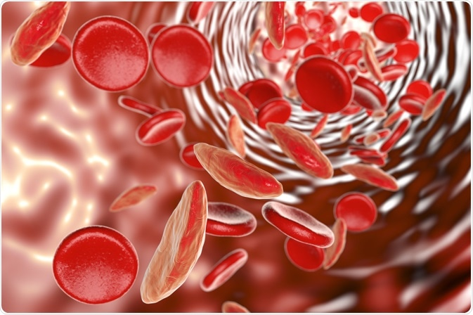 COVID-19 and Sickle Cell Disease