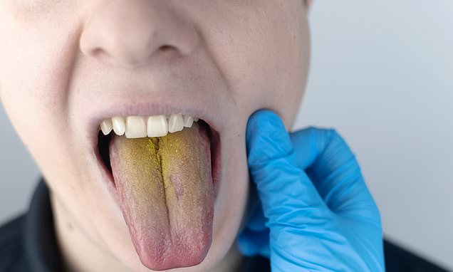 DR KAYE: How can I get rid of yellow gunge that covers my tongue?