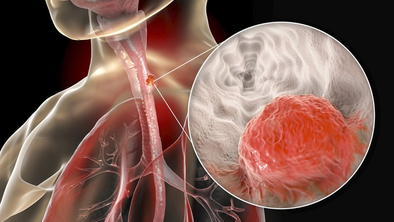 Esophageal Cancer: Preop Chemoradiotherapy Benefit for 10 Years