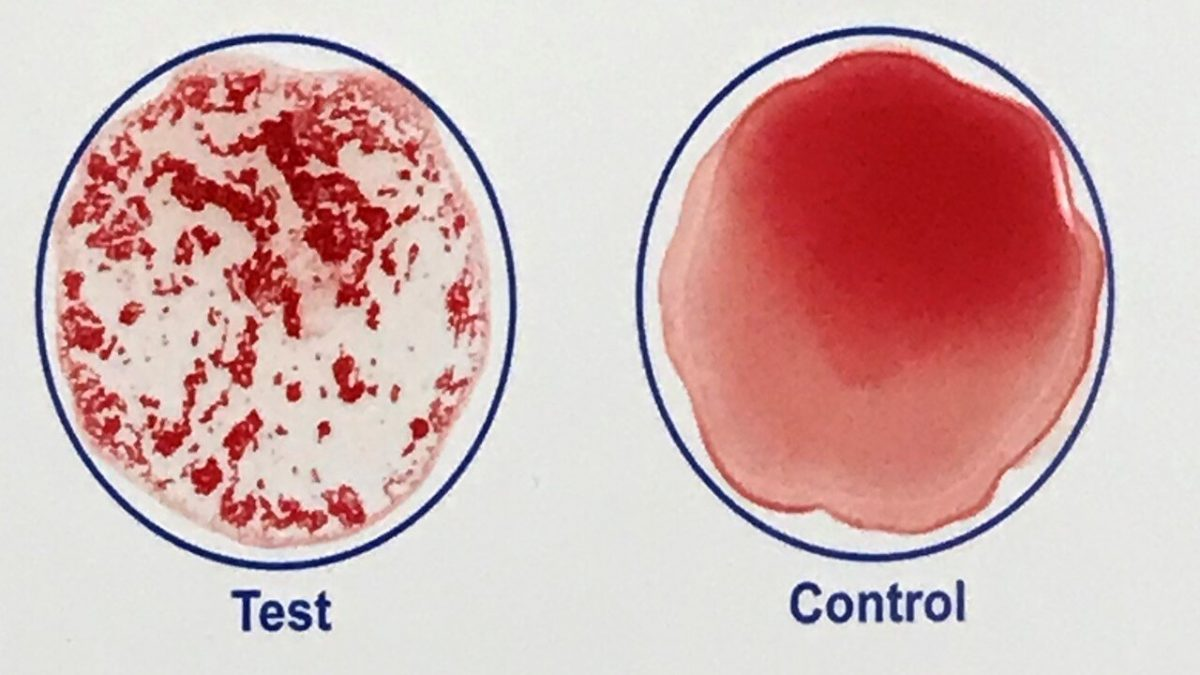 Rapid, at-home blood test could confirm COVID-19 vaccination in minutes