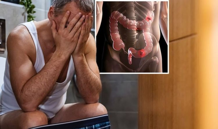 Bowel cancer symptoms: The 'sensation' when having a poo that can be a sign